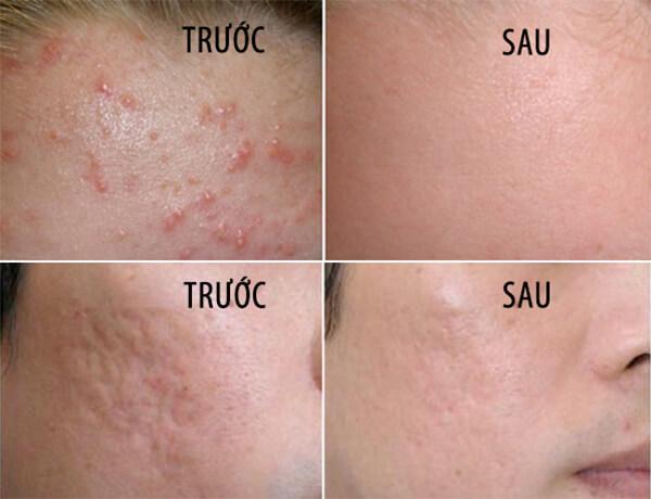 kem tri mun hanayuki acne white 25g anh 2