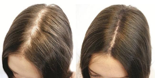 thuoc moc toc kaminomoto hair growth tonic s nhat ban anh 5
